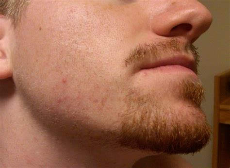stop womens chin hair growth frustration my beard or lack thereof beard board