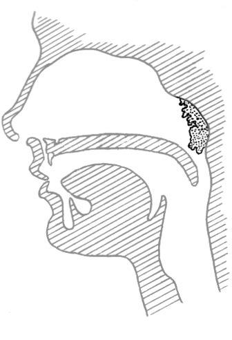 adenoids medicalanatomymouthandthroatadenoidspnghtml