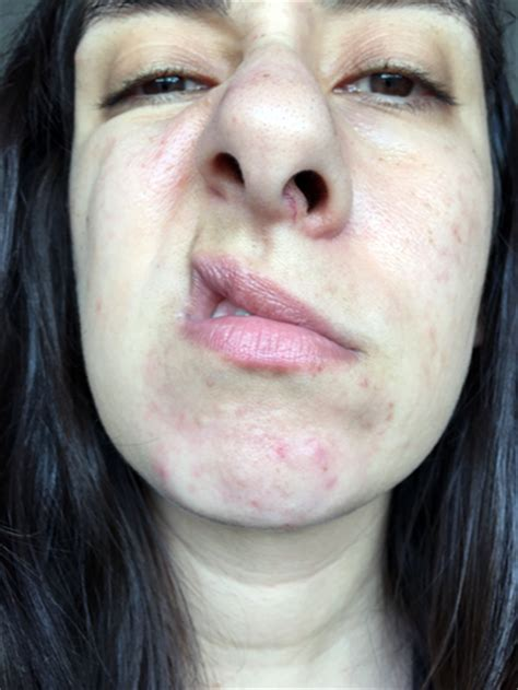 Best Detox For Cystic Acne by Paula S Choice Earth Sourced Cleanser Review The Acne
