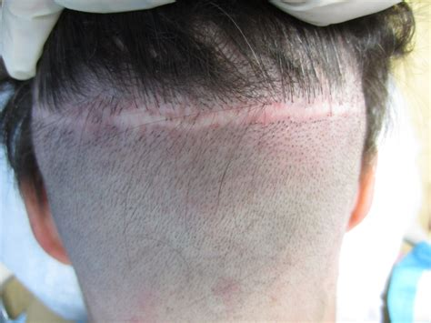 prescreened hair transplant physicians dr jezic offers houston s elite hair transplant
