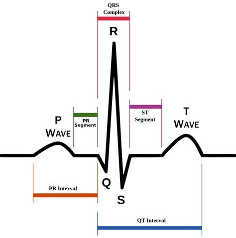 atrial fibrillation diagram understanding the ekg signal atrial fibrillation