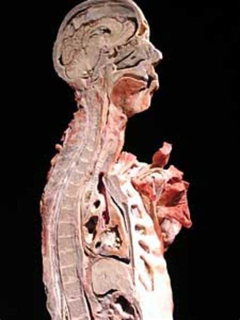 cross section human body a new way to view the body minnesota public radio news