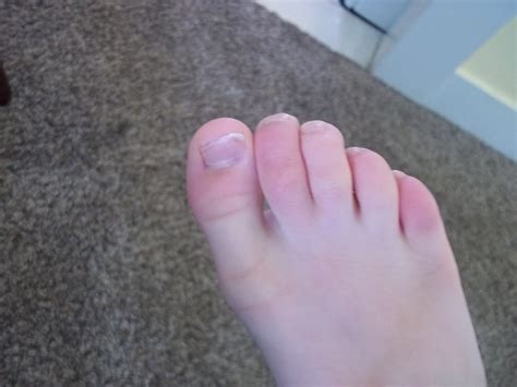 swollen toe swollen toe www imgkid the image kid has it