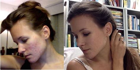 Detox Before And After Skin by Detox Transformation Story Meet 171
