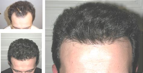 hair restoration hair transplant neograft orlando hair restoration newport beach neograft