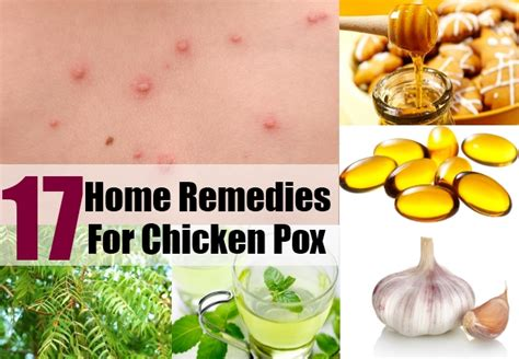 home remedies for chicken pox treatments cure