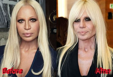 Bites Donatella Versace by Plastic Surgery Mistakes Before And After Www Pixshark