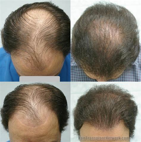 hair vagaina photos norwood class v hair restoration patient before and after