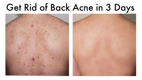 how to get rid of back acne at home in 3 days