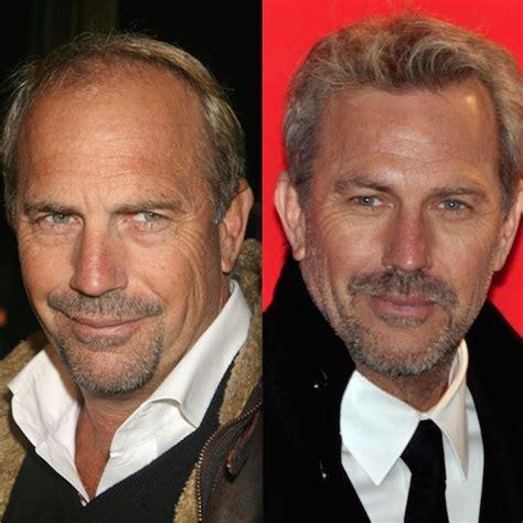 celebrity hair transplants before after celebrity hair transplants are on the rise