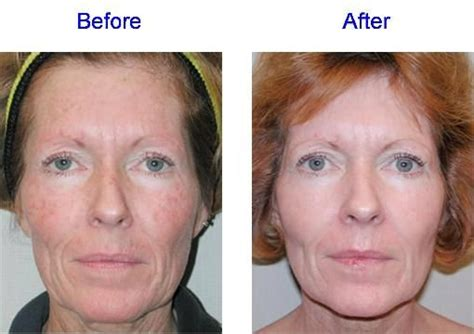 Paket Chemical Soft Peel Acne glycolic peel before after photos search