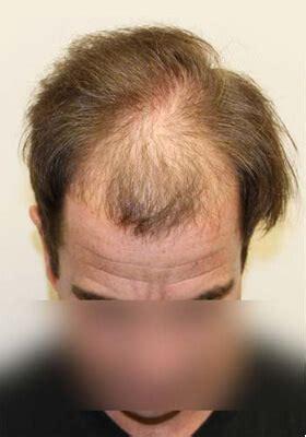 latest hair replacement techniques maxharvest procedure new hair restoration technique