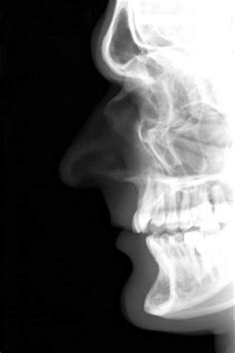cool dog skull xray | Pinterest | Dog skull and Dog