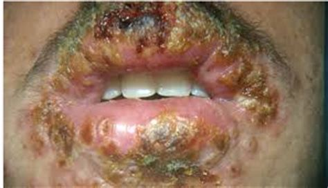 Obat Kutil Generik obat herpes generik