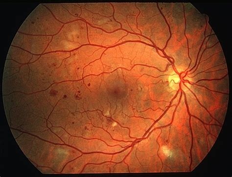 background diabetic retinopathy diabetic retinopathy dr causes stages symptoms