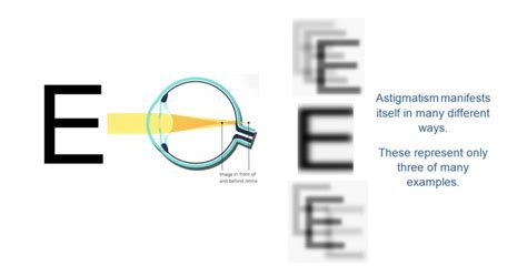 ghost images vision refractive errors eye doctor in elmhurst il