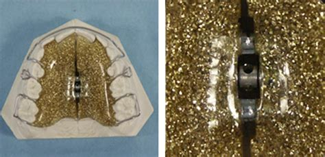 apparecchio mobile apparecchio mobile ortodontico ai denti