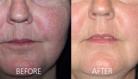 photo rejuvenation dr van aardt aesthetic medical