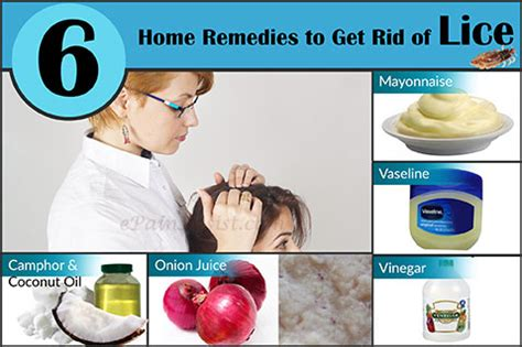 home remedies to kill lice on furniture 28 images 7