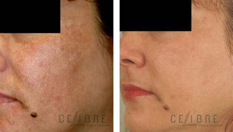 hydroquinone tattoo removal pin east indian bilder 29 motive on