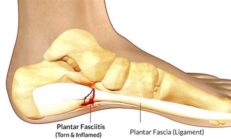Planters Fasciitis Symptoms by What Is Plantar Fasciitis And How To Treat It 187 Health