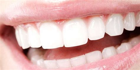 7 Reasons To Get Your Teeth Whitening Procedure Done By A Pro by Image Gallery Sparkling Teeth