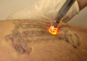 tattoo removal cork how laser removal works