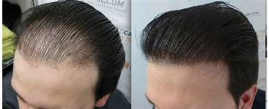 Hair Transplant Cosmo Hair Transplant In Hyderabad