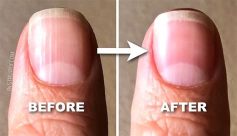 split nail bed fingernails indicate health problems pictures to pin on