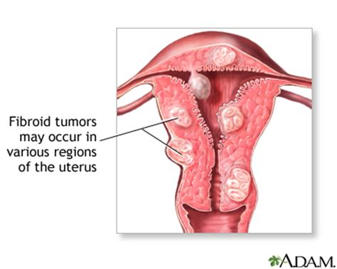inflammation of the lower section of the uterus abdominal mass