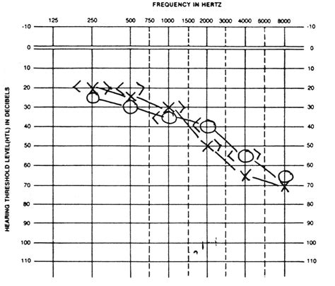 blank audiogram template 1 ausp 303 audiology speech pathology 303 with