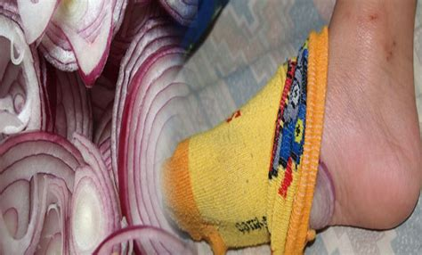 Onions In Socks To Detox by Why You Should Put Onions In Your Socks Before Going To