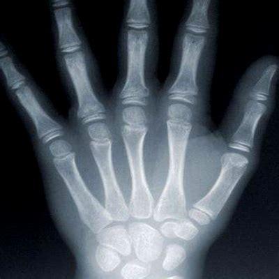 imagenes medicas rayos x rayos x digital