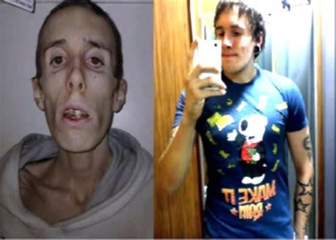 imagenes impactantes de bulimia y anorexia impactantes im 225 genes antes y despu 233 s de enfermos de