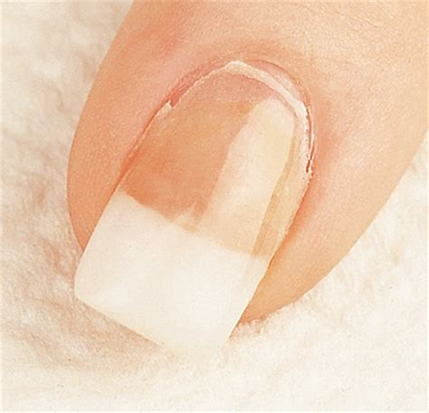 Nails Lifting From Nail Bed We Have Liftoff Troubleshooting Lifting Causes
