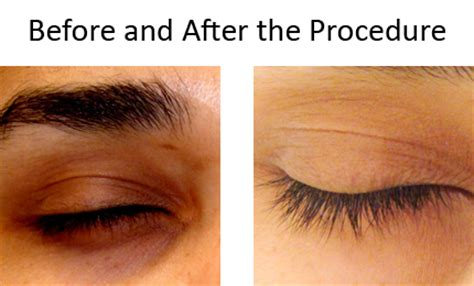 tattoo under eye circles before and after image gallery skin treatments dubai