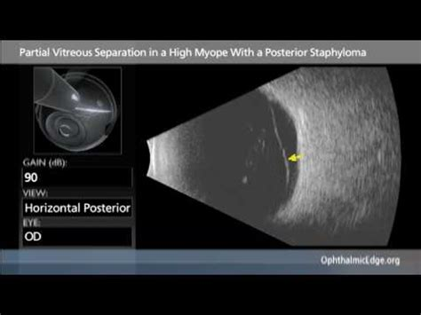 partial vitreous separation in a high myope with a
