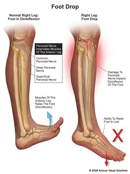 Peroneal Nerve Foot Drop
