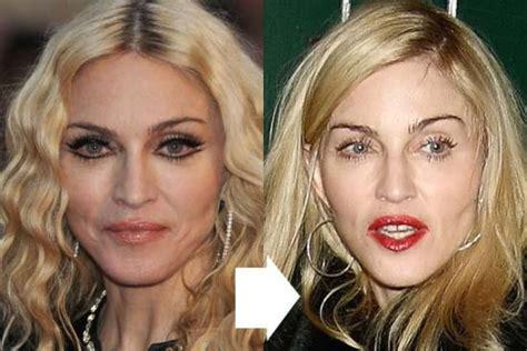 hillary clinton facelift 2014 did hillary clinton have plastic surgery 2014