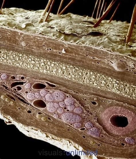 Cross Section Of Human Skin by Cross Section Of Human Skin Sem Science Structures