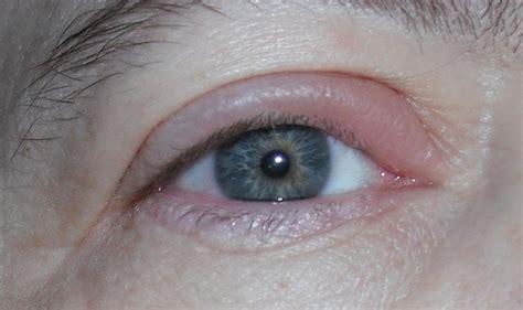 interno occhio orzaiolo interno