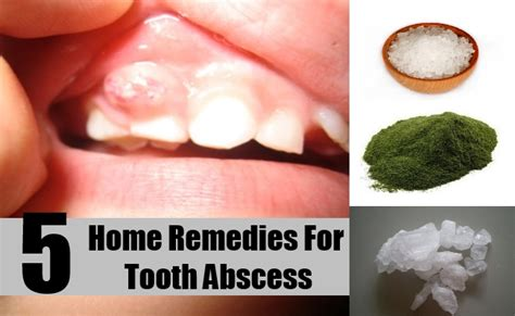 5 home remedies for tooth abscess treatments for
