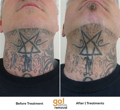 black ink tattoo removal this client is heavily tattooed but has decided to no