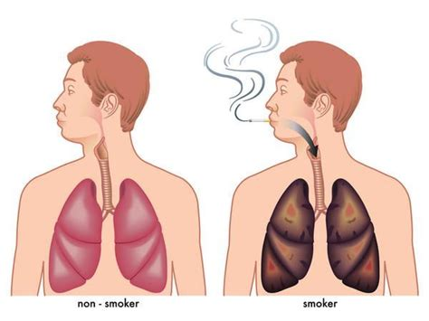 How Do You Detox Your Lungs by It Turns Out There S A Lot You Can Do To Help Detox Your