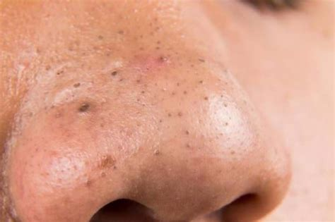 getting rid of a how to get rid of blackheads on nose