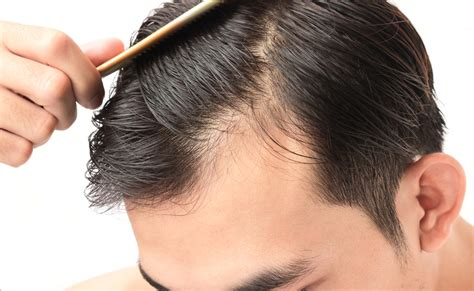 Why Does Hair Shed by What Is Prp Injection For Hair Loss Vargas And
