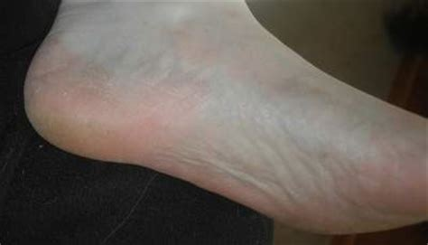 kill athletes foot in shoes how to use cornstarch for athlete s foot remedies lore