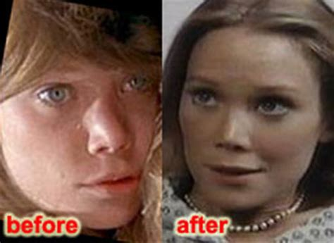 sissy before and after sissy spacek nose job