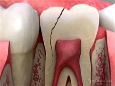 dental clinic philippines dental tourism dentist manila