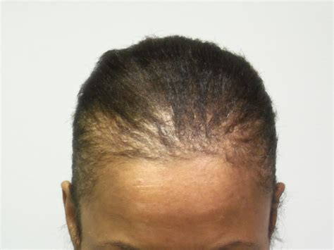 best hairstyles to prevent traction alopecia traction alopecia1 jpg african american hair loss